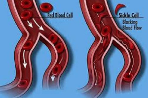 Sickle Cell Foundation