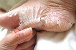 File photo: Peeling skin