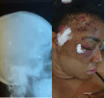 After 2 years plus, pellets are still coming out - Angel Okorie shows X-ray