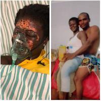 Husband pours acid on wife