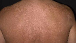 Ringworm is caused by a fungus called tinea.