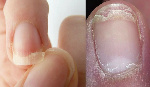 File photo: Brittle nails