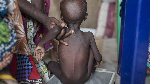 7,271 out of 1.2 million children in the state are suffering from acute malnutrition