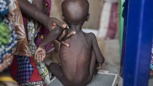 File photo: A malnourished child