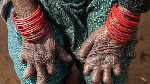 Twenty leprosy cases have been recorded in Kogi State.